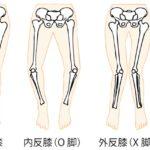 ◆【8/9(月)大切にしたいね膝関節】